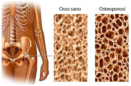 L'osteoporosi determina perdita di massa ossea specie nel tessuto spugnoso all'estremità delle ossa lunghe